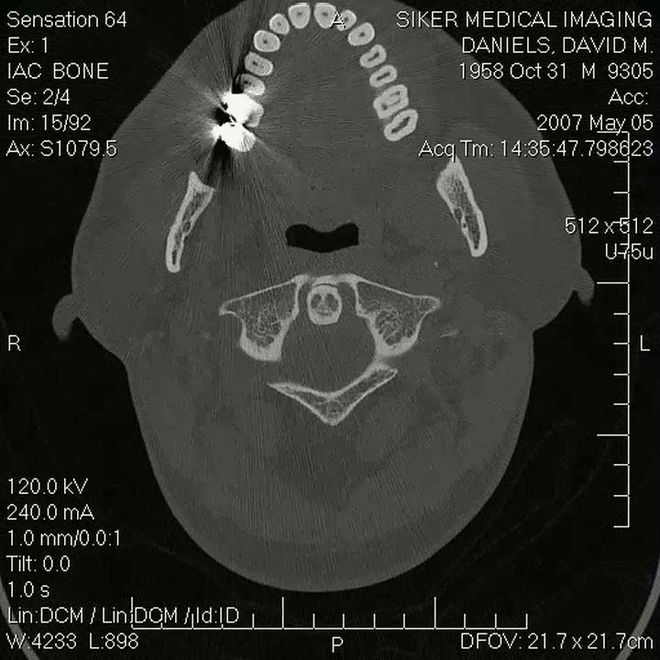Freaked - David Daniels MRI